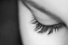 メイクを落とさず寝た女性、まつ毛が抜け猛烈なかゆみが続く 原因はまつ毛に大量の「ダニ」