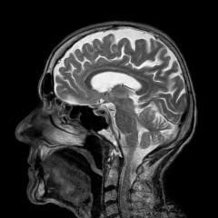 """30年来の頭痛の原因は""""脳に巣くった10cm寄生虫""""だと判明した男性 「ゾッとする」と悲鳴の声続々"""